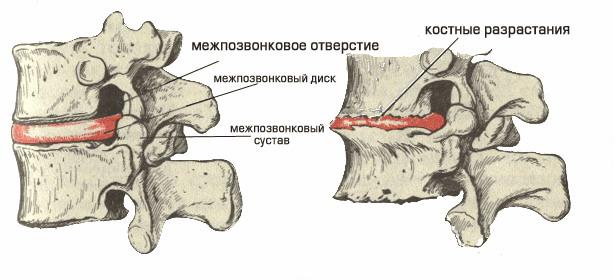 Деформация позвонков по причине остеохондроза
