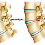 Грыжа в шейном отделе и шейный остехондроз: как распознать и лечить?