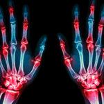 Лучшие лекарства и народные рецепты от боли в суставах