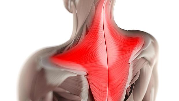 Лучшие мази от болей в мышцах