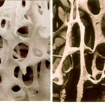 Остеопения и остеопороз: симптомы и лечение