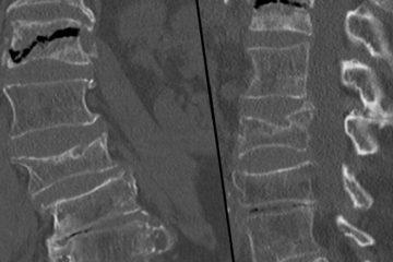 болезнь Кюммеля на рентгене