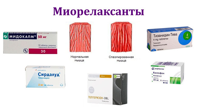 набор миорелаксантов для лечения остеохондроза шейного и грудного отдела