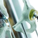 После установки эндопротеза: гимнастика и осложнения