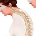 Сенильный кифоз: симптомы, диагностика и лечение