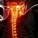 Симптомы появления остеохондроза: шейный и грудной отделы