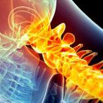 Болезненный шейно-плечевой остеохондроз: диагностика, причины и лечение