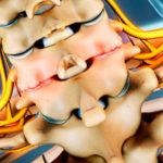 Остеофиты шейного отдела: причины и лечение