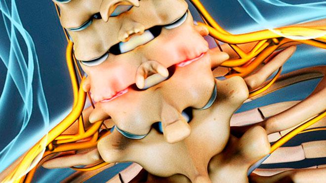 остеофиты в шейном отделе позвоночника